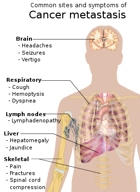 metastatic cancer causes