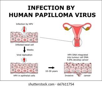 papilloma virus cancer)