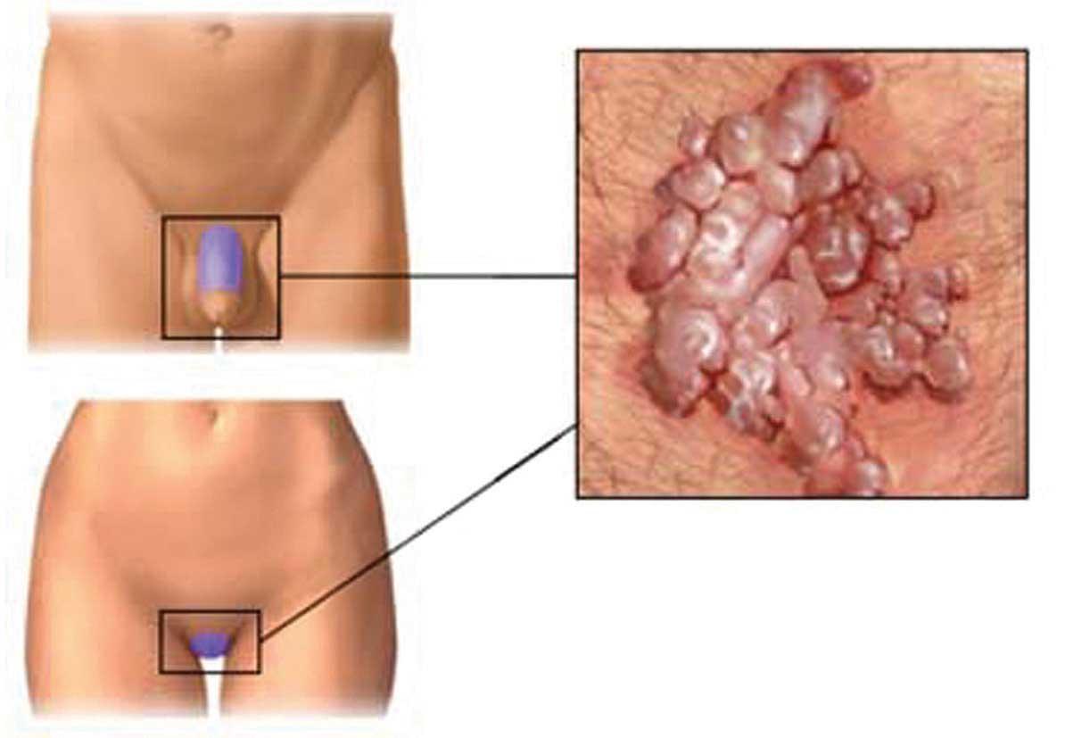papilloma virus uomo come si presenta