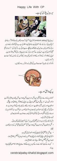 Papilloma meaning in urdu. Ulei de cocos organic cu aroma naturala de usturoi