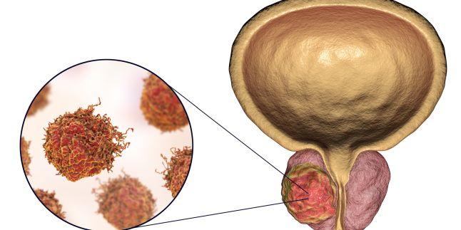 Cancerul de prostata se innegresc