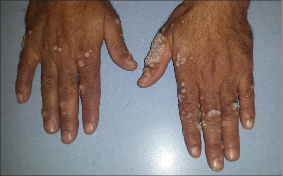 papilloma tumora renal cancer what is it