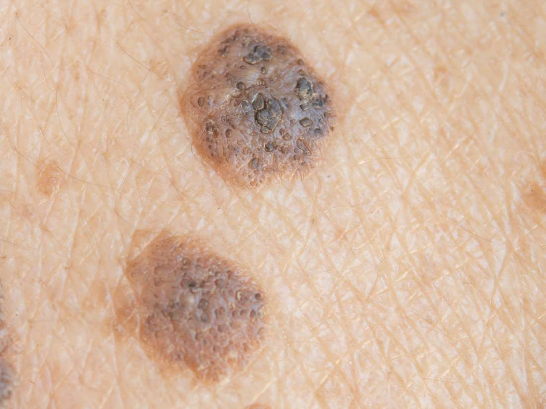 what causes warts under breasts