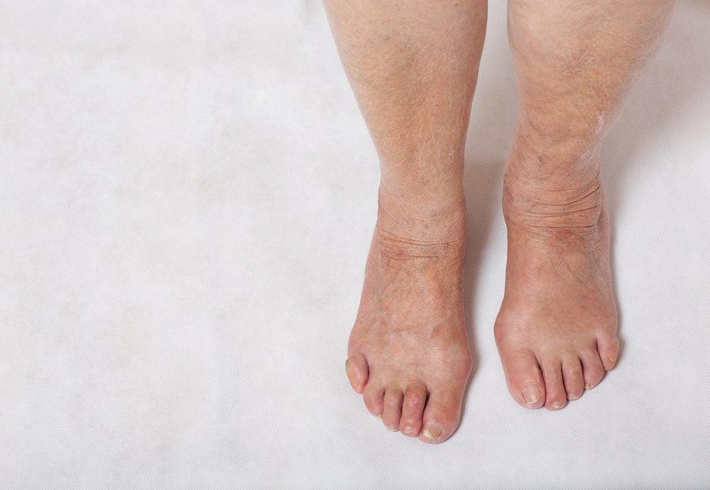 Remediu pentru edemul picioarelor cu vene varicoase - Cauze de înroșire pe picior
