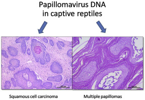 squamous cell carcinoma and papilloma)