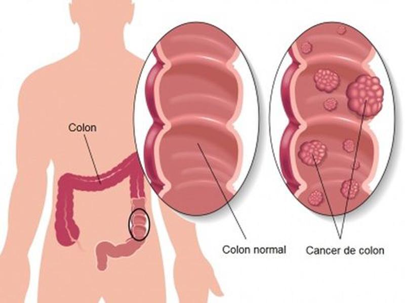 cancerul rectal definitie