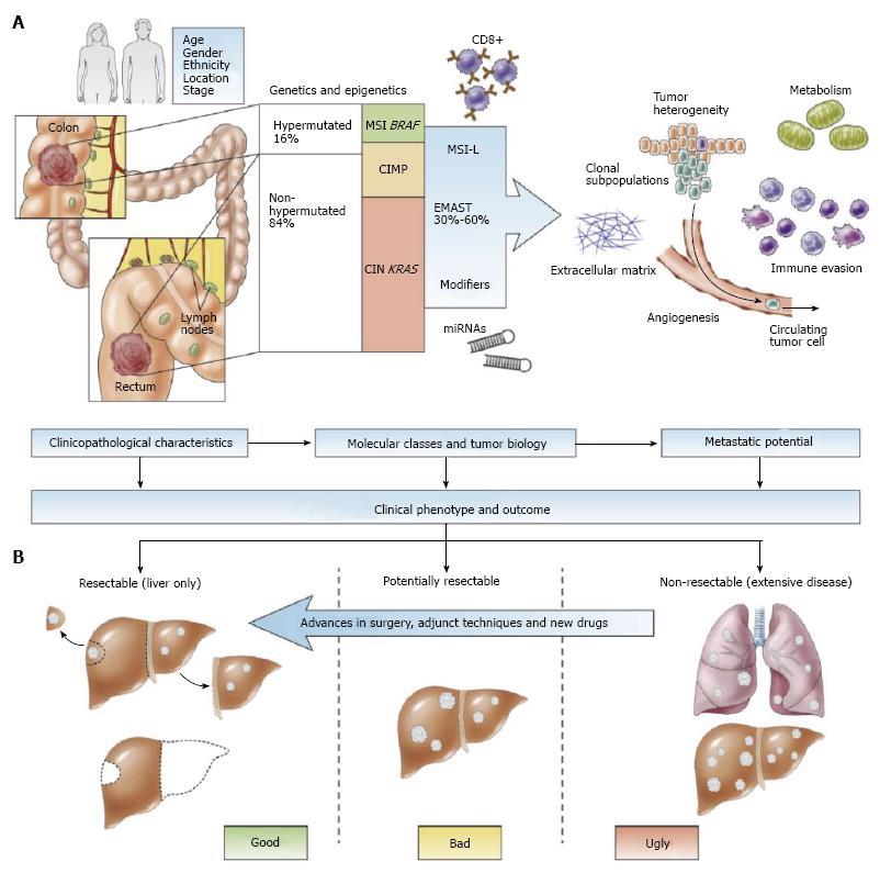 colorectal cancer liver metastasis hpv cancer metastasis