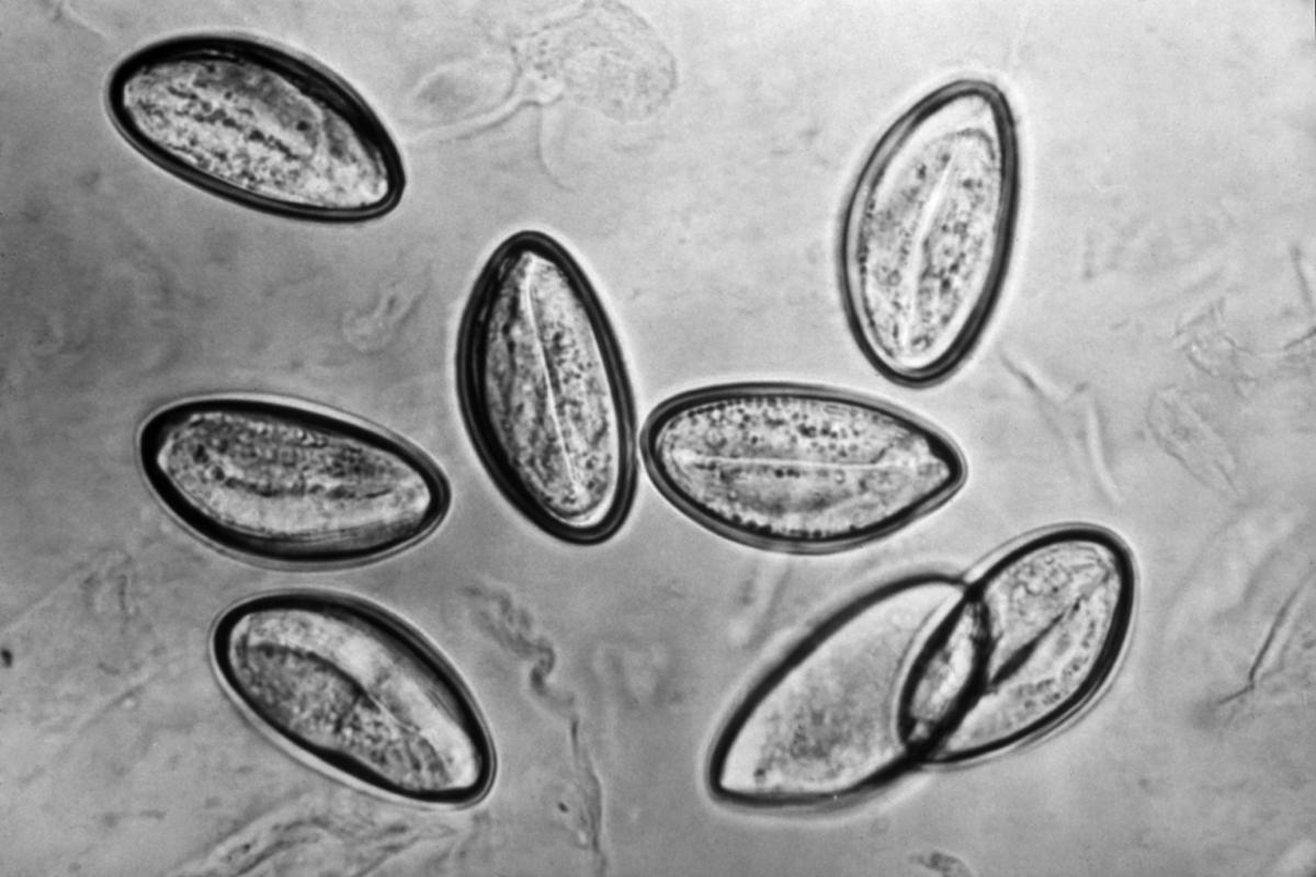 gambar enterobius vermicularis