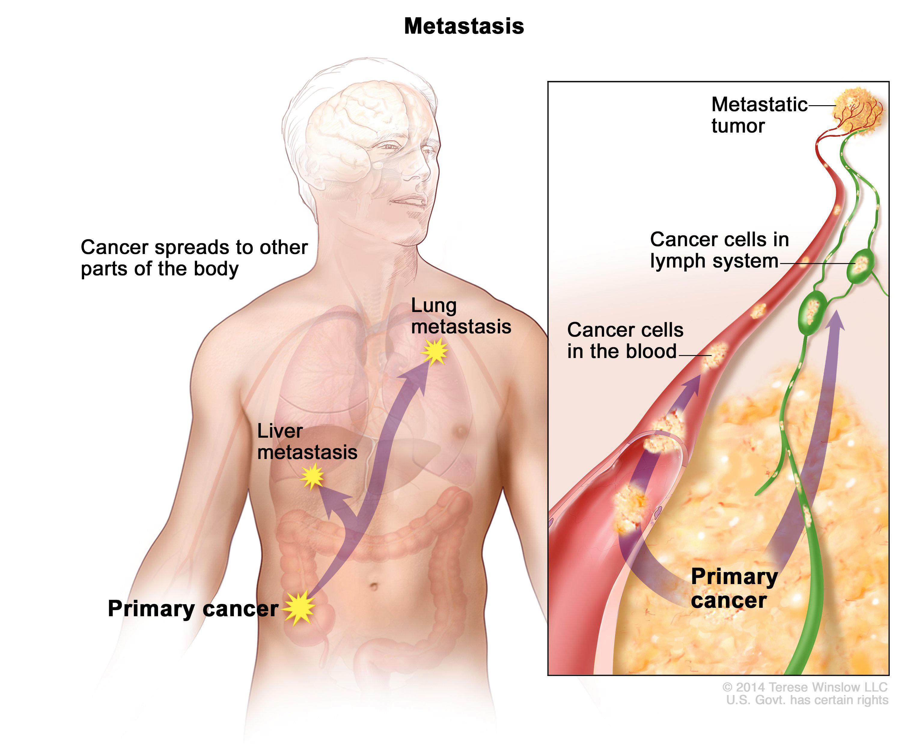 metastatic cancer causes human papillomaviruses and carcinogenesis well-established and novel models