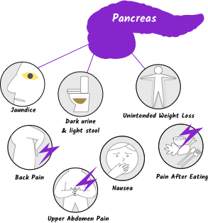pancreatic cancer early symptoms)