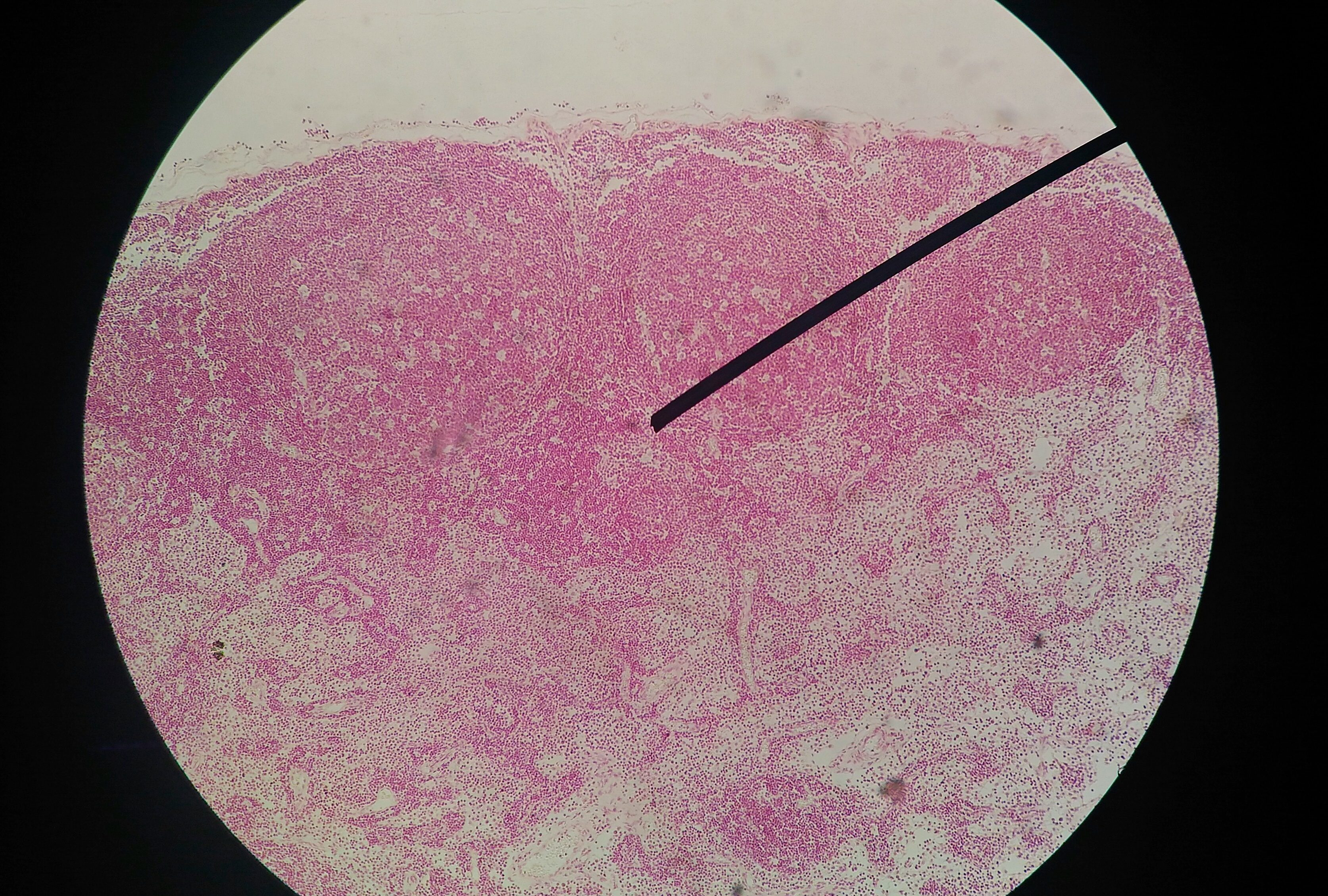 papilloma virus si vede con pap test