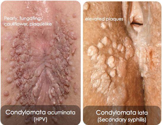 condylomata acuminata hpv 6 11 cancer after hodgkins lymphoma