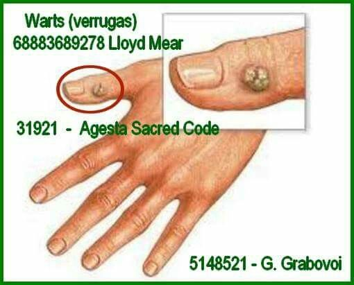 warts on hands dream