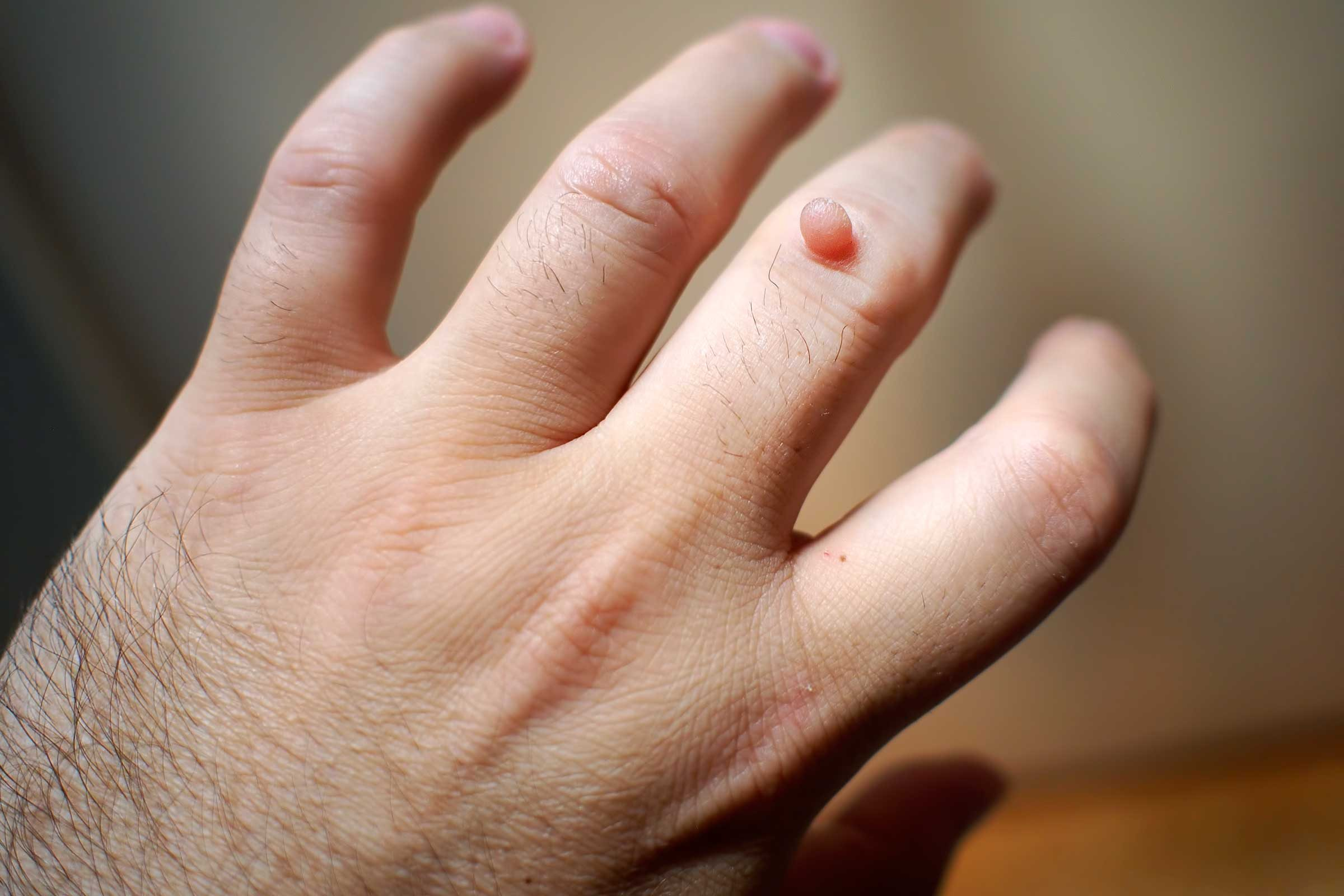 warts on hands disappear)