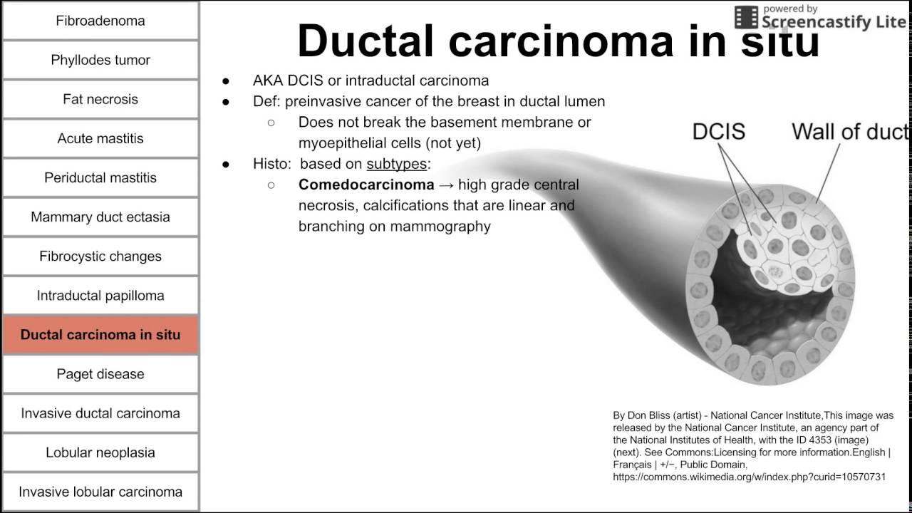duct papilloma define)