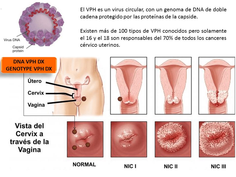 virus de papiloma humano riesgo