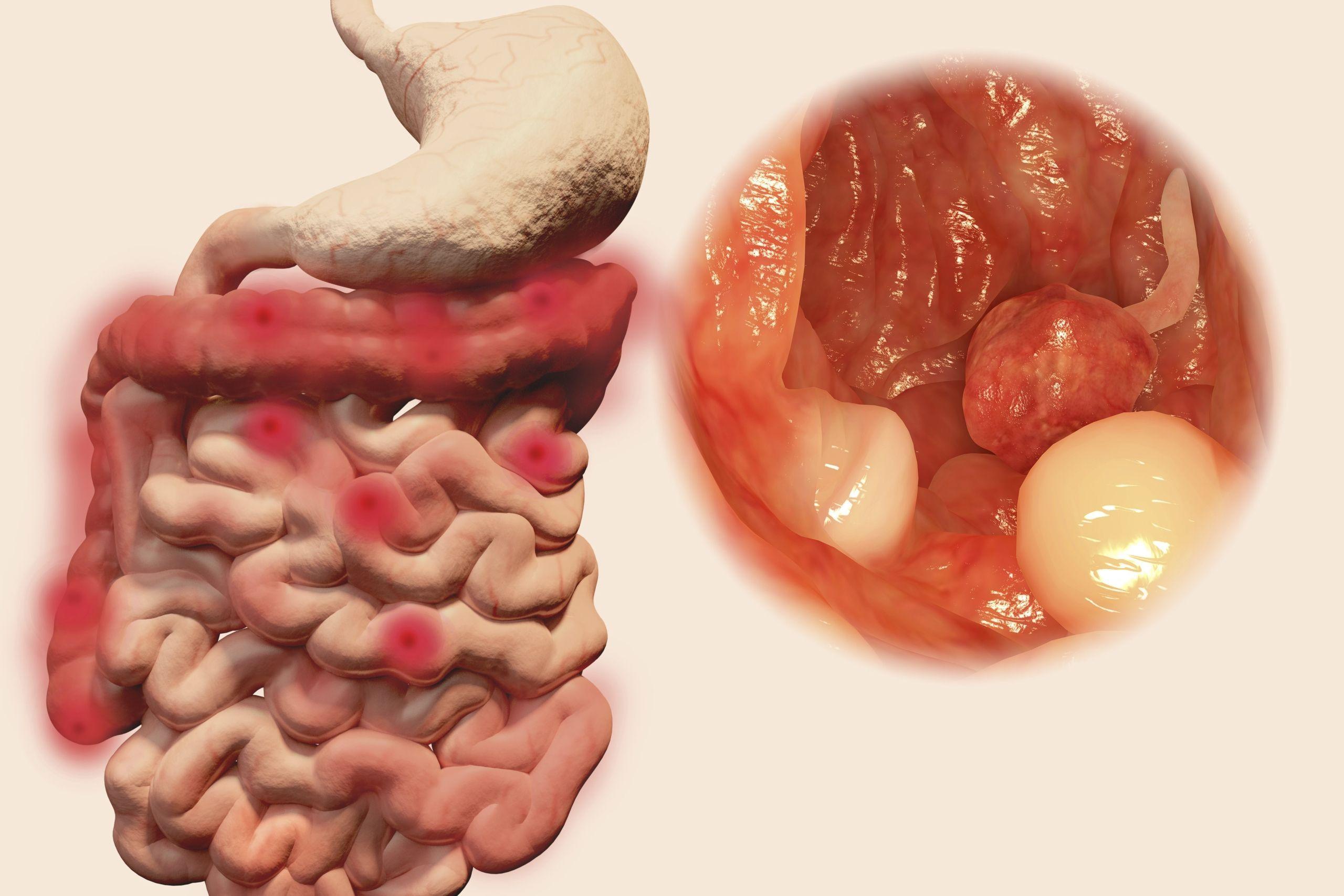 cancer colon droit pronostic