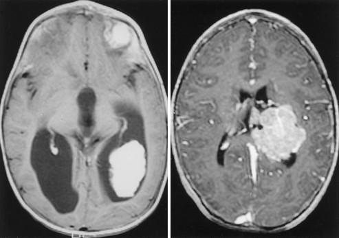 Diagnostic Imaging: Pediatric Neuroradiology - asspub.ro