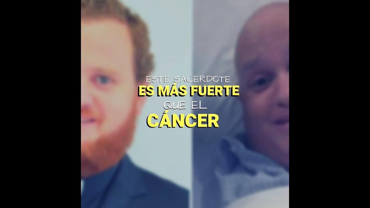 cancer facial que es)