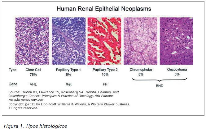 cancer renal tipos