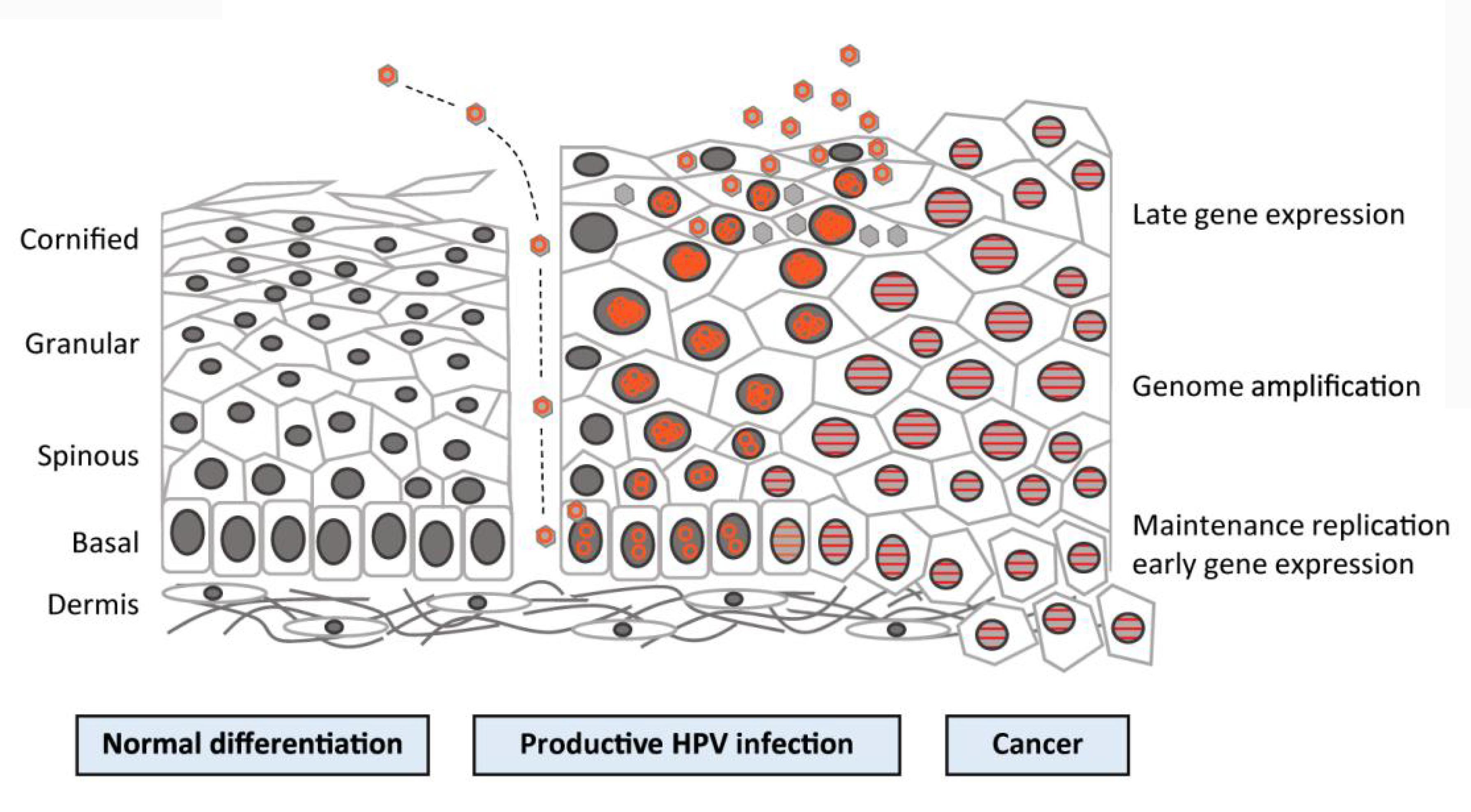 hpv cancer genetics)