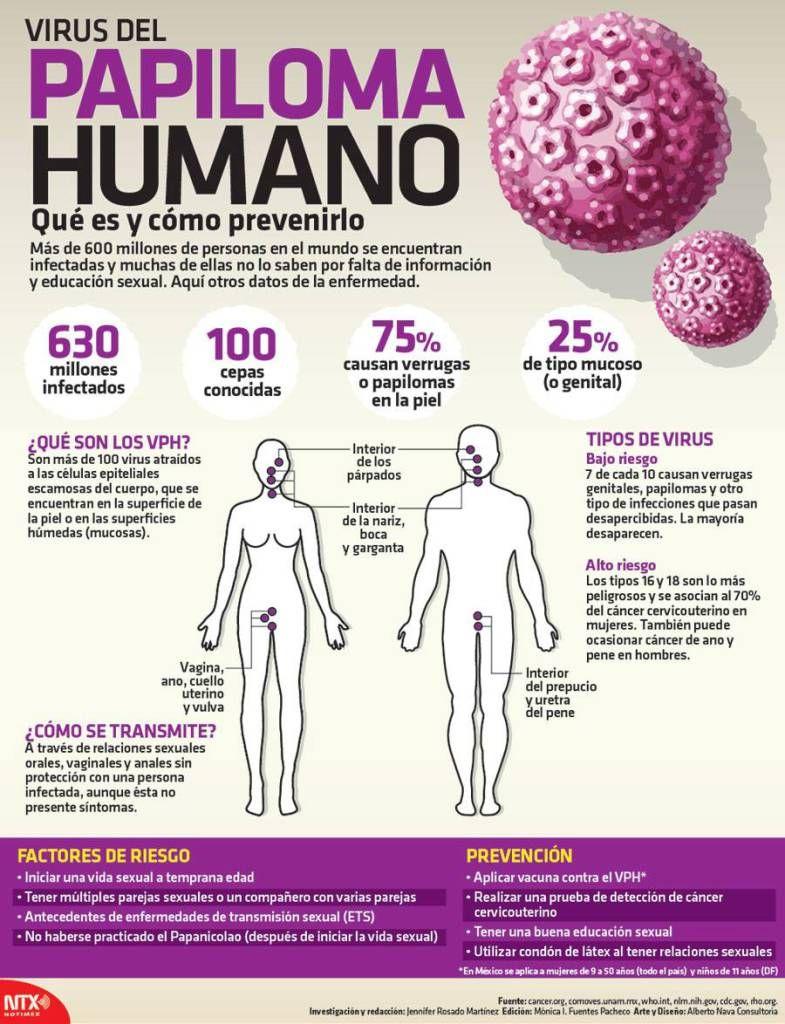 virus papiloma humano en una mujer