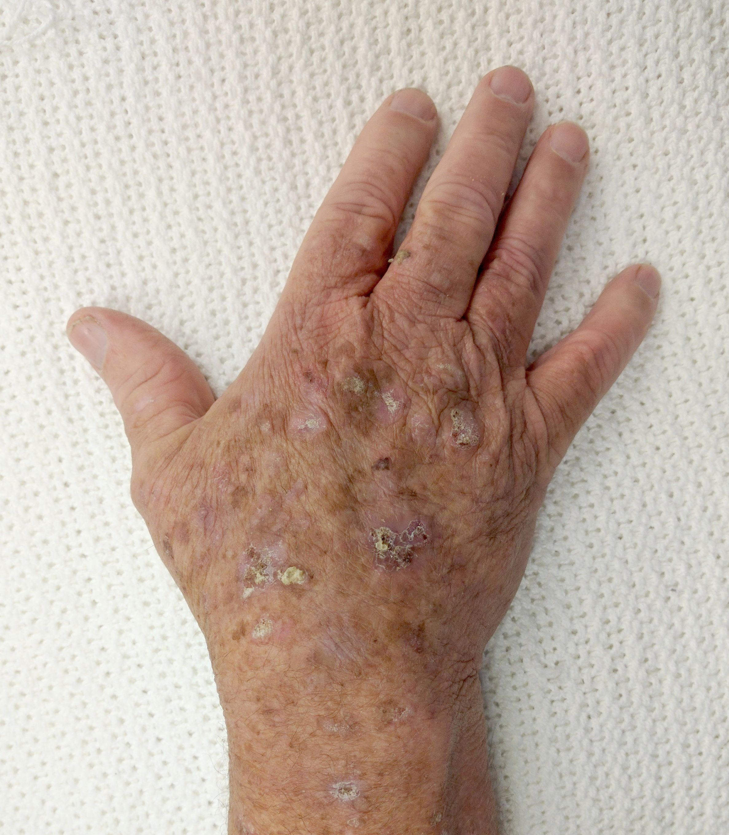 warts on hands from sun)