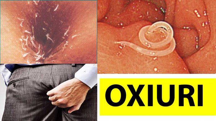 simptome infectie cu oxiuri