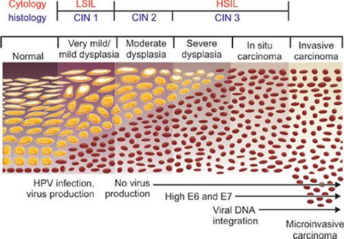 hpv virus and leep procedure)