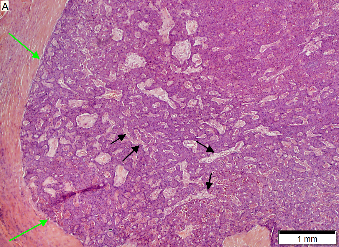 cancer pancreatique neuroendocrine)