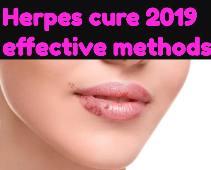 hpv herpes treatment)