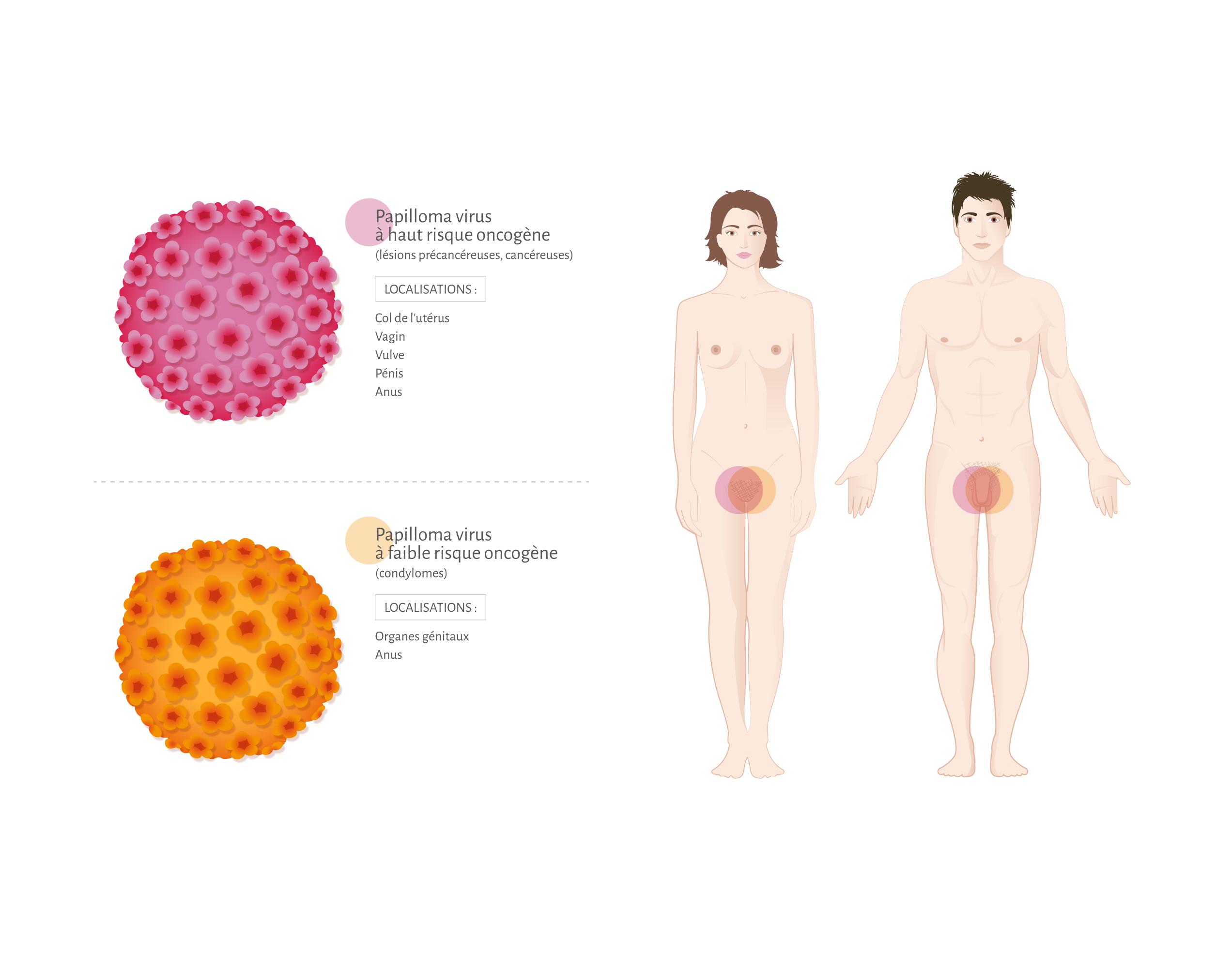 guerir le papillomavirus chez lhomme