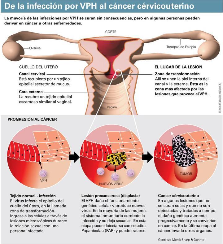 virus papiloma humano mujer consecuencias human papillomavirus vaccine storage