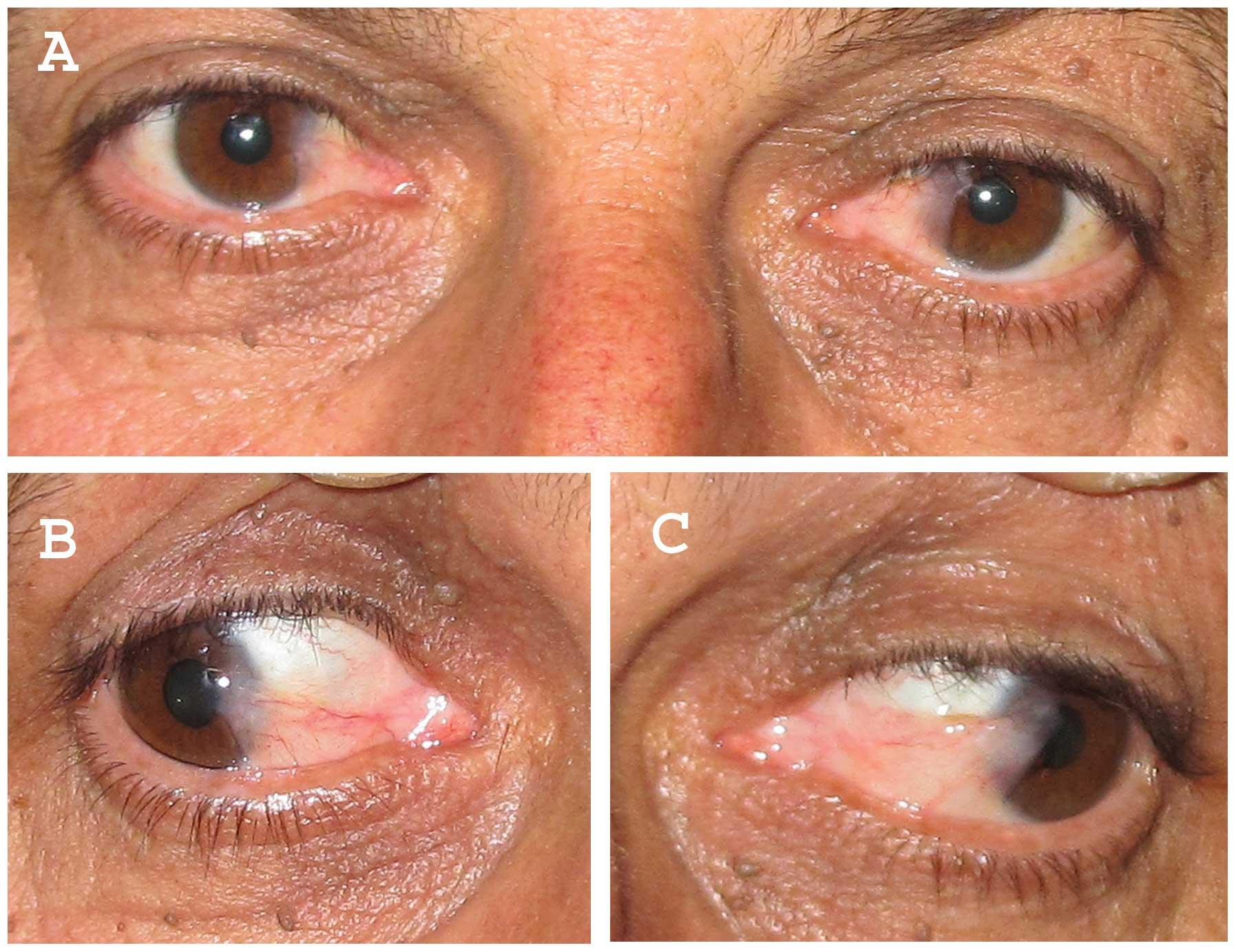 papilloma eye lesion)