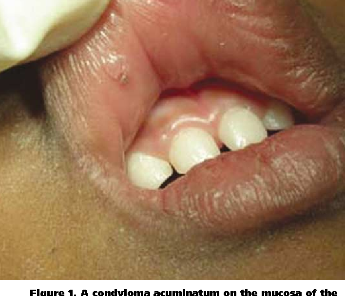 condyloma acuminata in infant)