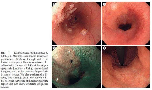 human papillomavirus in esophagus)