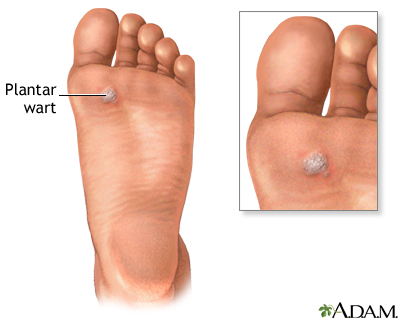 warts foot problems)