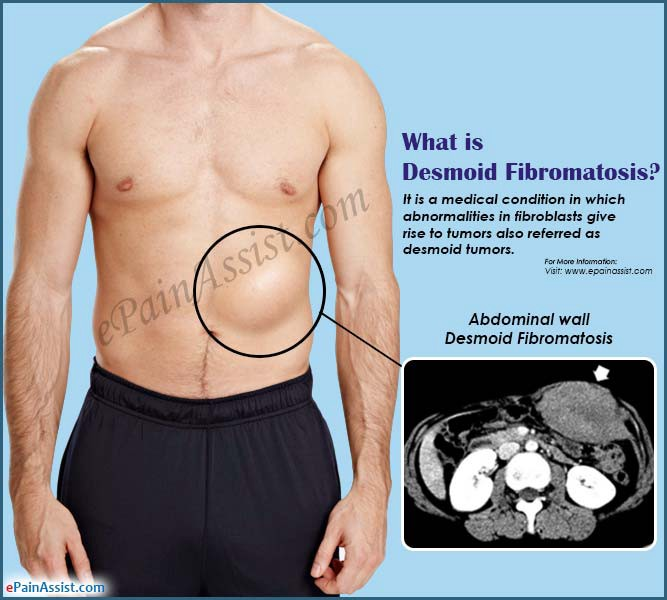 cancer in abdominal muscle hpv vaccine research studies