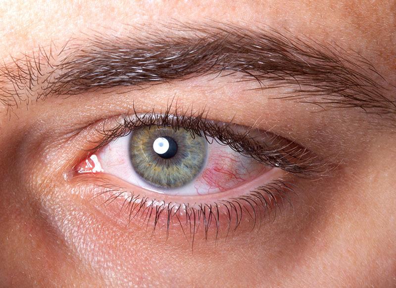 SUA: O tânără a crezut că are o geană în ochi. Când a verificat s-a îngrozit - avea 14 viermi