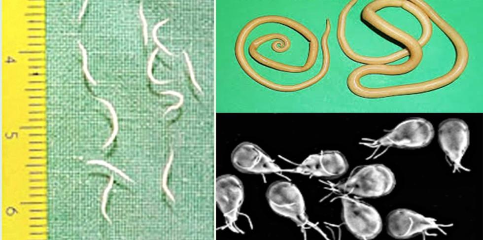 que tomar para el parasito oxiuros