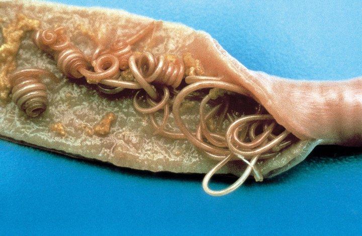 parazit u kocek cancerul la san la ce varsta apare
