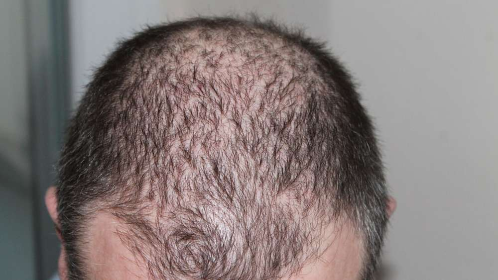 hpv impfung haarausfall