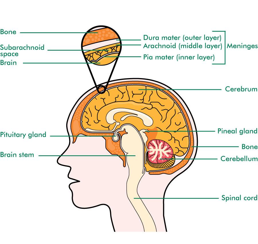 cancer cerebral meninges)
