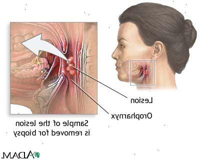 hpv virus svalgcancer)