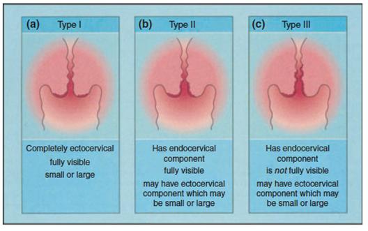 cancer col uterin stadiul 4 speranta de viata)