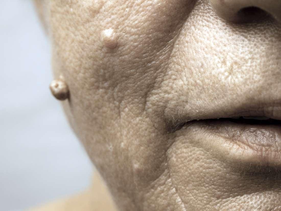 hpv type skin warts