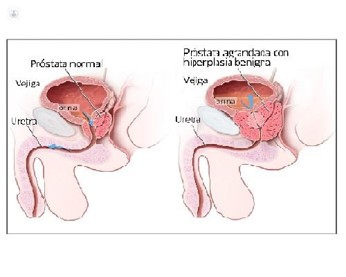 Ce inseamna PSA (Antigenul specific prostatic)