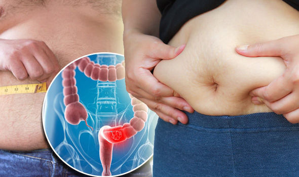 ovarian cancer abdominal bloating pictures)