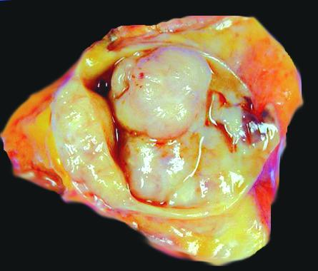 intraductal papillomas