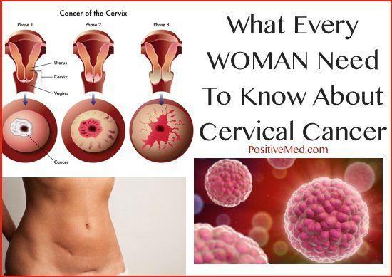 Cervical Cancer Awareness Week